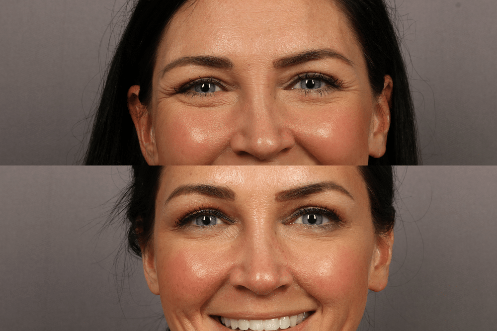 The Truth About Botox, Botox Before and After, MD Laser Studio Mooresville NC, Should I get Botox, Stilettos and Diapers, Molly Wey